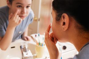 אקנה: טיפוח עור הפנים