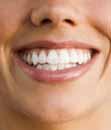 כיצד להלבין את השיניים
